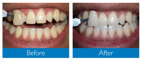 before after zoom whitening